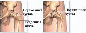 Лечение артроза тазобедренного сустава: 5 упражнений при коксартрозе