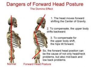 Польза и вред йоги: нарушения осанки и Стойка на голове несовместимы