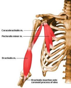 Перенапряжение каких мышц формирует кифотическую осанку, сутулость?