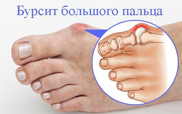 Лечение бурсита большого пальца стопы