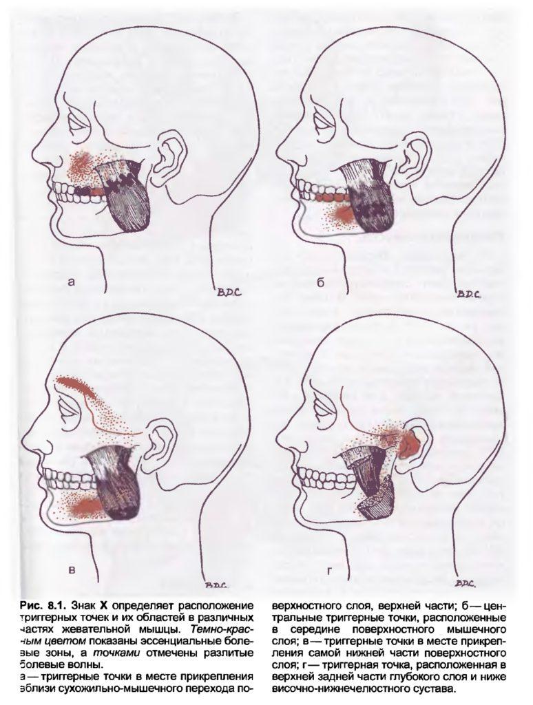 Массаж триггерных точек для снижения гипертонуса жевательных мышц и расслабления челюстей
