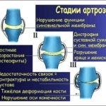 Как лечить артроз, тазобедренный коксартроз, гонартроз коленного сустава? Двигаться! Но грамотно…