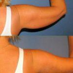 Толстые руки, или Как убрать жир с рук? Упражнения для похудения рук