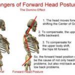 Польза и вред йоги при нарушениях осанки и синдроме запястного канала