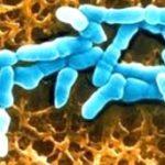 Лечение бактериального вагиноза, или Лечение гарднереллеза у женщин